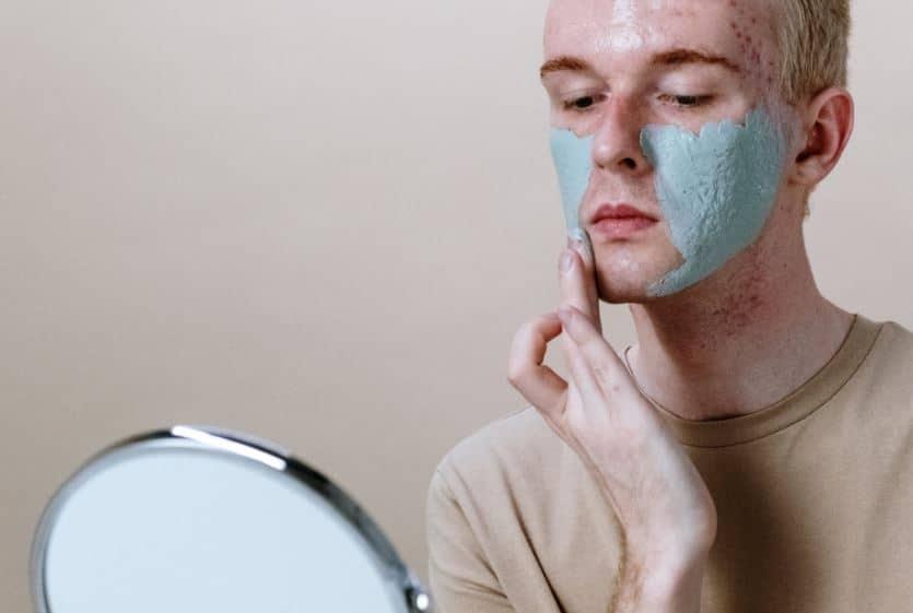acné en hombres